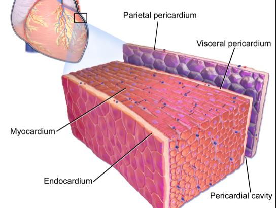 Masses, Pericardial And Myocardial Disease 3: Pericardial Disease image