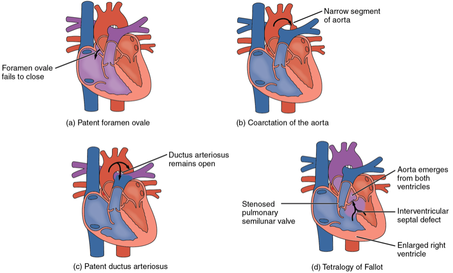 Congenital Heart Disease In Adults 2: Simple Defects image