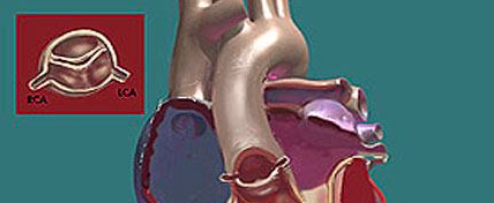 Bicuspid Aortic Valve And Pulmonic Stenosis image