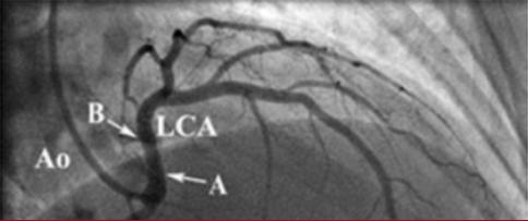 Anomalous Coronary Origins image