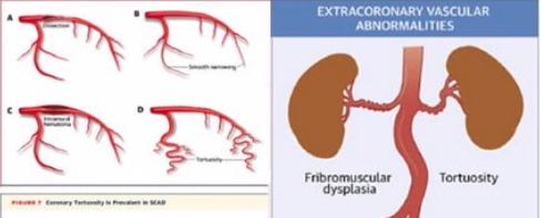 An Unusual Acute Coronary Syndrome image
