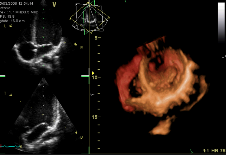 Right Ventricular Function 2: Echocardiographic Assessment image
