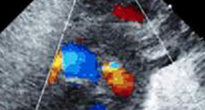 The Physiology Of The Fetal Cardiovascular System image