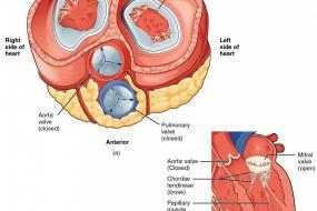 Prosthetic Valves 3: Types Of Valves image