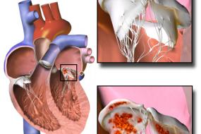 Prosthetic Valves 2: Valvular Problems image