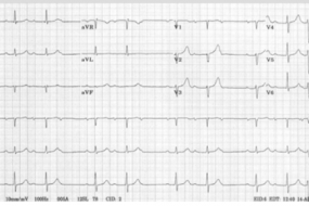 Pacemakers And Implantable Cardioverter Defibrillators (ICD) Top 10 image
