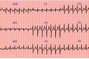 Supraventricular Tachycardia Top 10 image