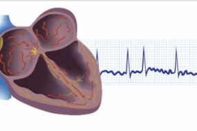 Atrial Fibrillation Basics Top 10 image