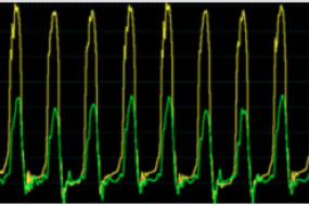 Waveform Interpretation: Simultaneous LV And RV Waveforms & Simultaneous LV And FA image