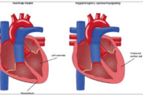 Hypertrophic Cardiomyopathy Top 10 image