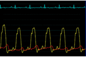 Waveform Interpretation: Left Atrial, Aortic, Peripheral Arteries, Left Ventricular image