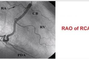 Coronary Angiography image
