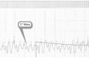 Waveform Interpretation: Right Atrial, Right Ventricular, Pulmonary Artery image