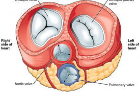 Prosthetic Valves 1: General Approach image