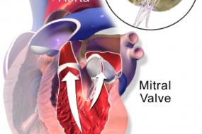 Mitral Valve 3: Mitral Stenosis image