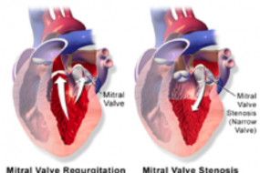 Mitral Valve 2: Mitral Regurgitation image