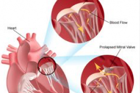 Mitral Valve 4: Mitral Valve Surgery image