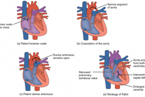 Critical Congenital Heart Disease, Part 2 image