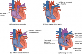 Congenital Heart Disease In Adults 1: Terminoloy And Embryology image
