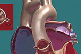 Bicuspid Aortic Valve And Pulmonic Stenosis image