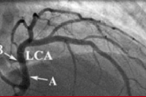 Anomalous Coronary Origins image
