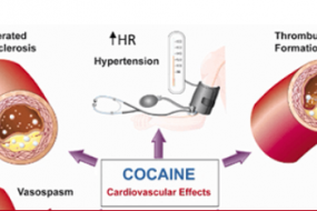 Cocaine-Associated ST-Elevation Myocardial Infarction image