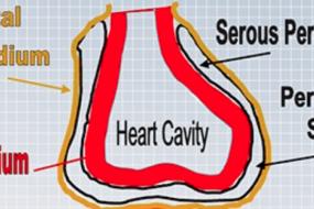Pathophysiology Of Cardiac Tamponade image