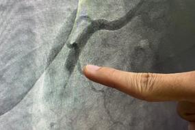 Coronary Angiography: Views and Pitfalls image