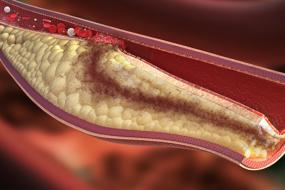 Coronary Artery Anomalies, Basics image