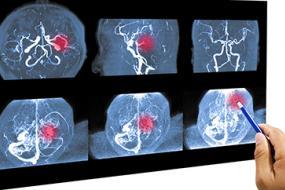 Bypass Graft Angiography Pathology and Limitations image